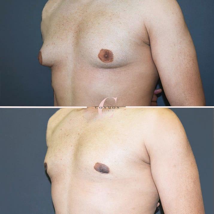 Gynecomastia Surgery (Man Boobs)