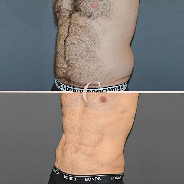 Vaser HD Liposuction Abs