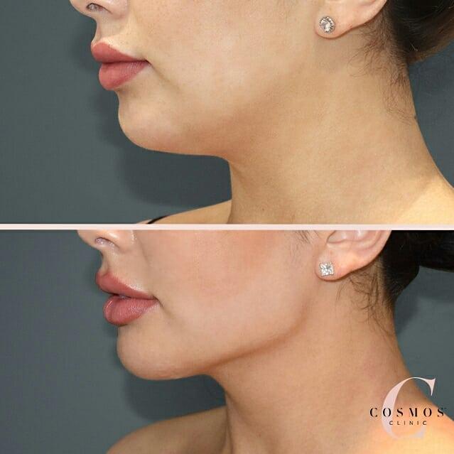 Neck Liposuction - Mild Case