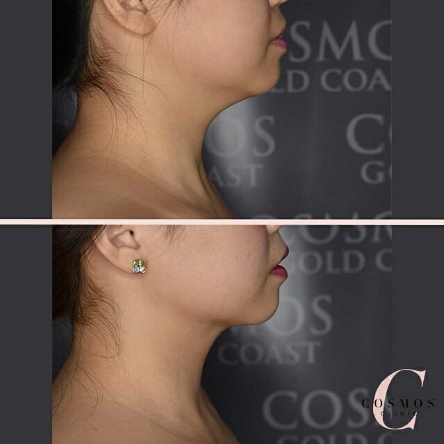 Neck Liposuction - Moderate