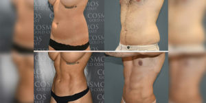 Abdominal Etching Six Packs