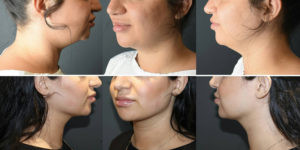 Weak Chin / Neck Fat Removal